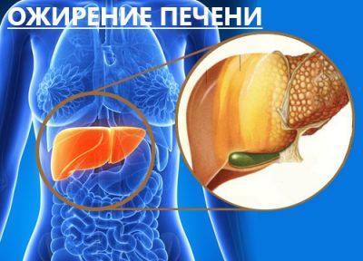 Алкогольное ожирение печени