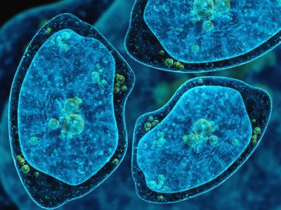 Амебный абсцесс печени - симптомы болезни, профилактика и лечение Амебного абсцесса печени, причины заболевания и его диагностика на EUROLAB