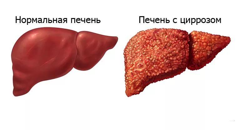 Поражение циррозом