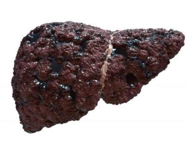 Пораженная циррозом печень