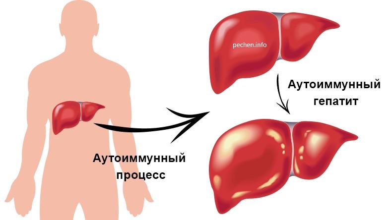 Аутоиммунный гепатит фото