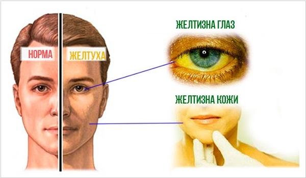Симптомы болезни Боткина